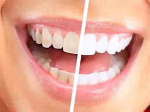 Wybielanie zębów w OrthoVision
